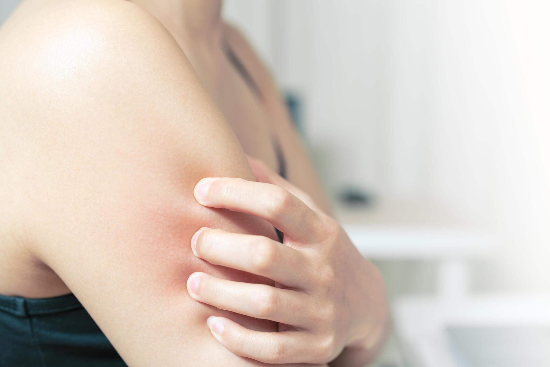 4-sintomas-para-identificar-uma-possivel-alergia-alimentar.jpeg
